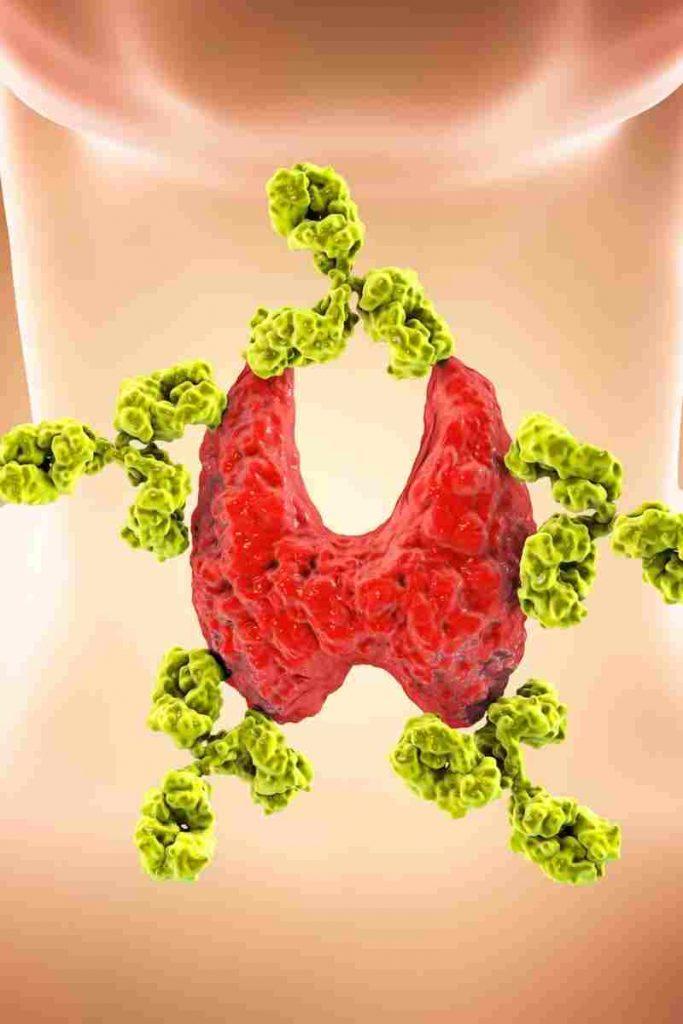 hipotiroidismo subclinico como bajo de peso 1