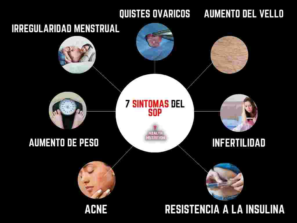 ovarios poliquísticos síntomas 1
