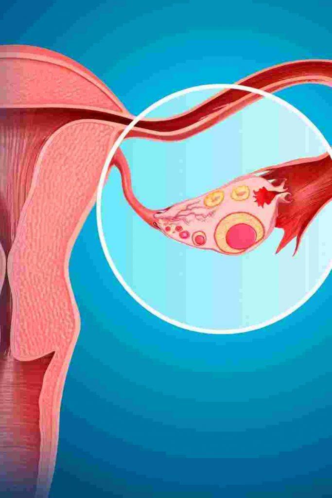 tratamiento ovarios poliquísticos dieta para ovario poliquístico 1