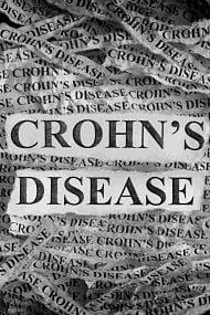 enfermedad de crohn piel 1